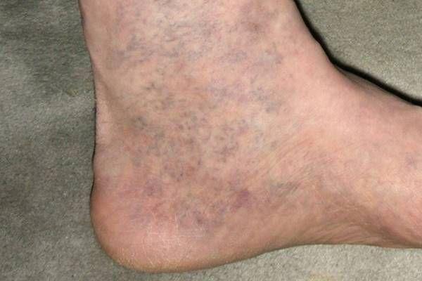 visszér bőr visszér kapilláris hálók a lábakon