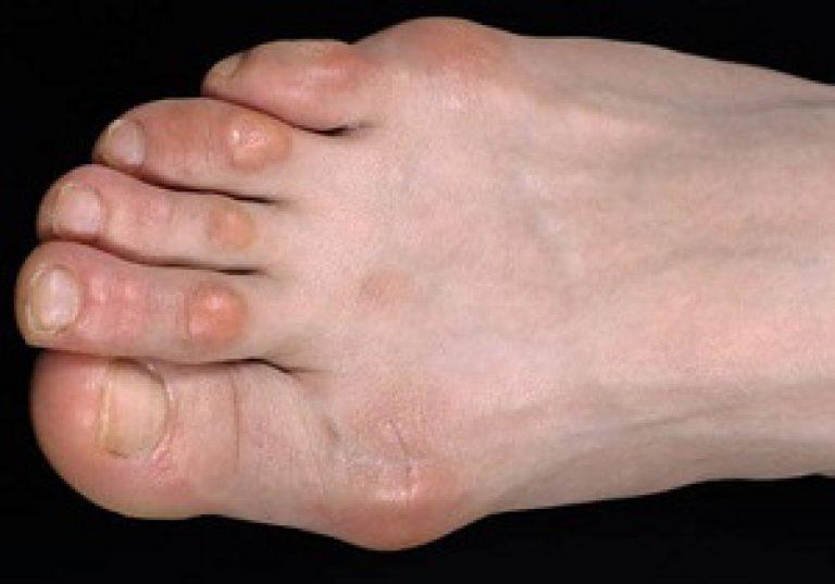 a láb vénájának repedése visszérrel