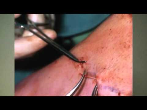 Szanatórium Khmelnik ízületi kezelés