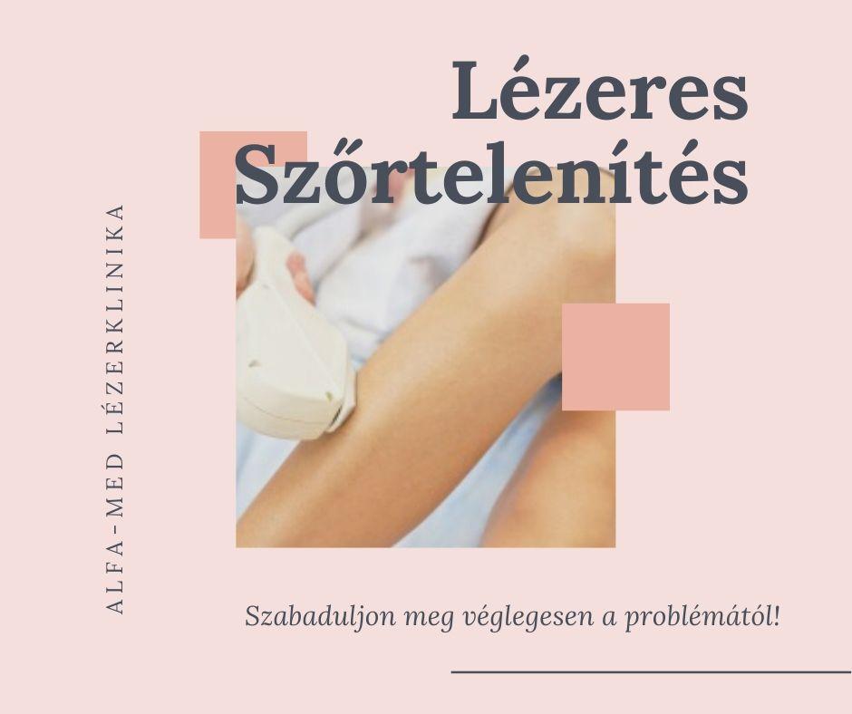 Szőrtelenítés - A módszerekről orvosi szemmel