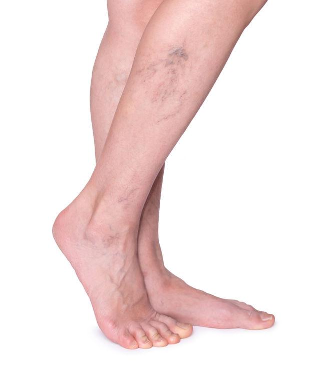 a láb visszérkezel a visszeres kezeléssel)