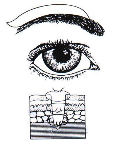 lehetnek-e a szem visszerei