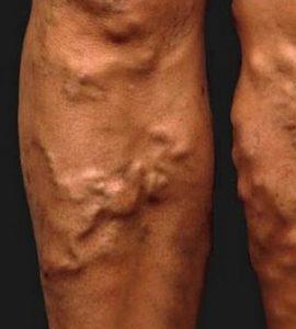 a comb és az alsó láb retikuláris visszerei)