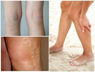 a varikózis utolsó szakasza a lábakon