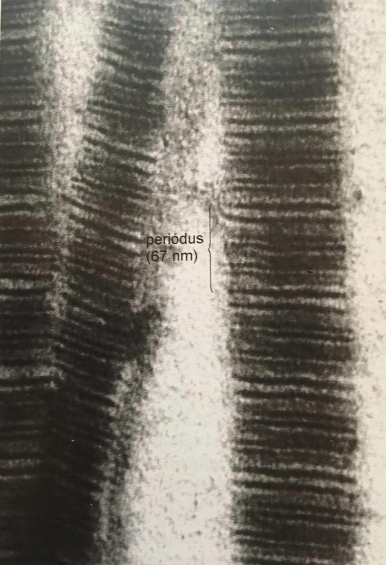 hogyan kell kezelni a retikuláris varikózist