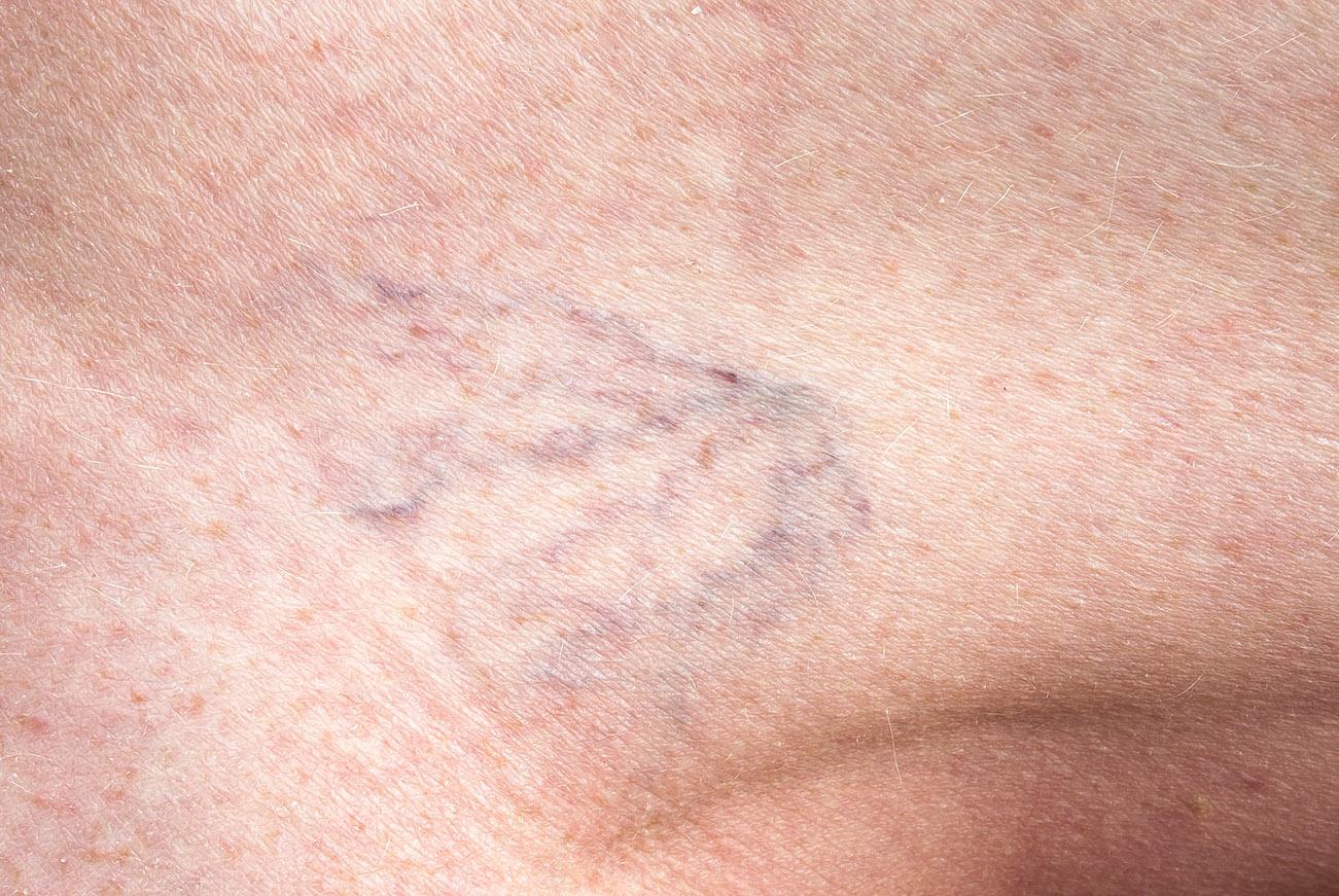 véna belülről visszérrel probléma a visszerek a lábakon