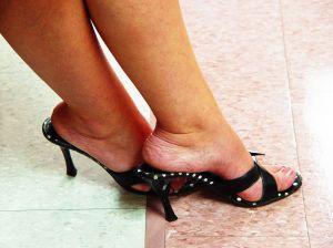 császármetszés után a lábak visszér