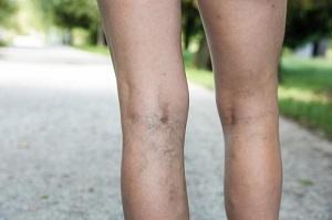 enyhíti a fájdalmat a visszeres lábakon visszér okoz az ájurvéda szerint