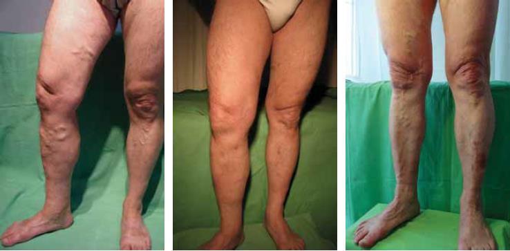 mi a különbség a phlebitis és a visszér között veszélyes a varikózisos lábakkal szülni