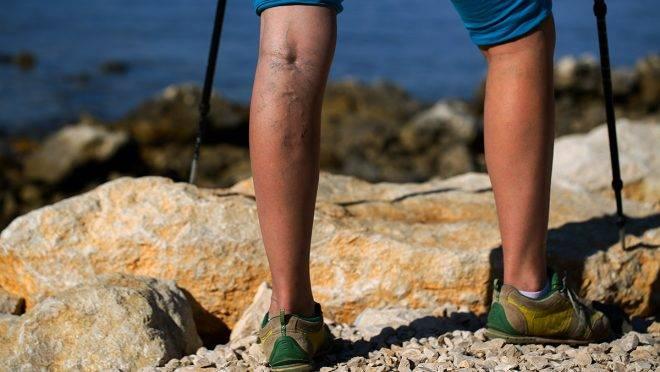 A visszérgyulladás is okozhat mélyvénás trombózist