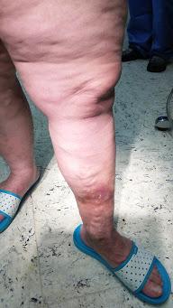 a láb duzzanata visszeres műtét után az alsó végtag fájdalma visszeres