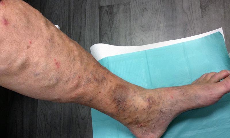 a lábak bőrének pigmentációja visszeres)