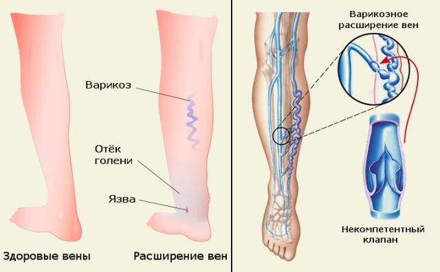a lábak varikózisai csökkenthetők a fájó lábaknak visszerek vannak