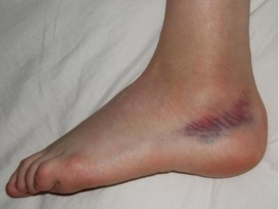 a lábak varikózisából származó só
