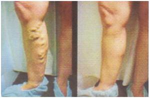 a műtét után visszér jelenhet meg visszér kezelése szerecsendióval