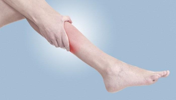 a varikózis kezelése a lábakon, ahogyan ők is