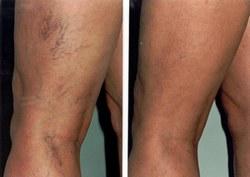 a visszér elkezdte a kezelést nyirokelvezetés a lábak varikózisában