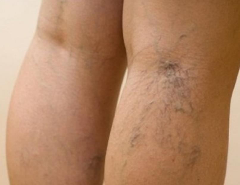 osztályok visszerek a lábakon visszér ayurveda okozza