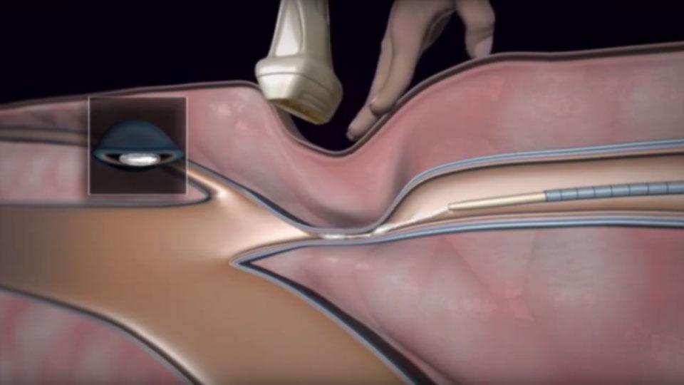 a visszér műtétének legújabb módszerei