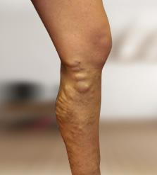 Pattanó ujj műtét - Medicover Magánkórház Kézsebészet