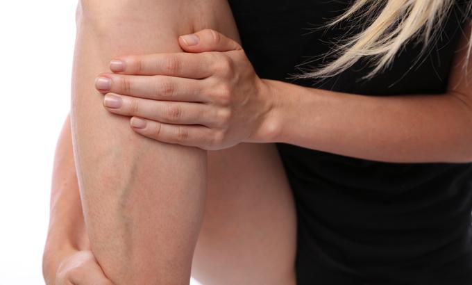 visszérbemelegítés visszér a lábakon kezelés orvos