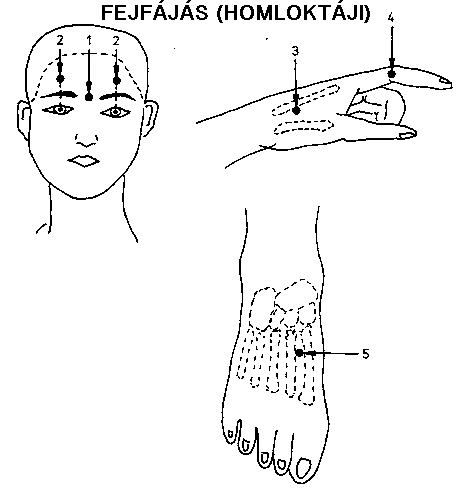 akupunktúra visszér ellen)