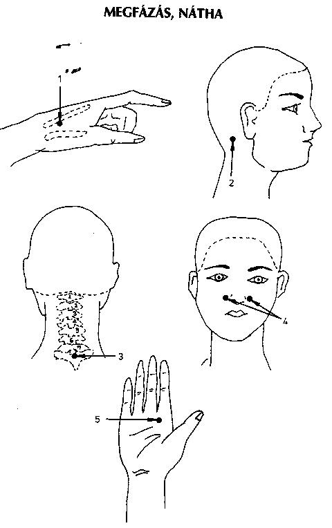 akupunktúrás pontok a visszerekből