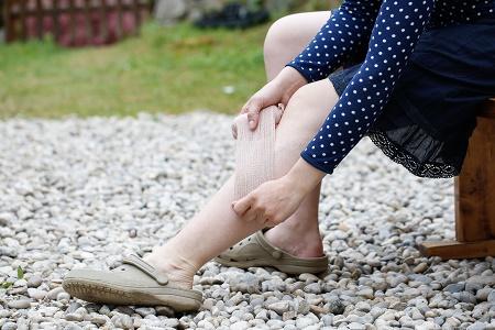 Hogyan előzzük meg, hogy visszeres legyen a lábunk?