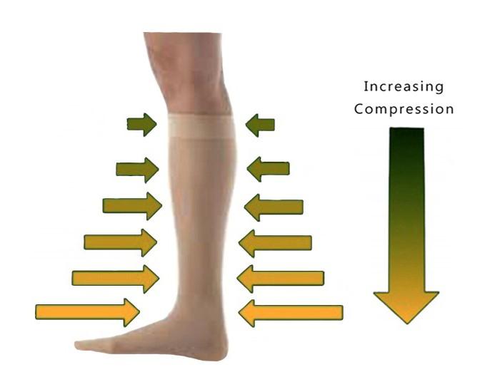 hogyan válasszuk ki a kompressziós térdmagasságot a visszerek esetén