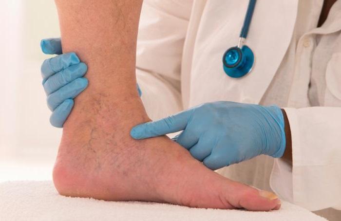 bőrbetegségek a lábakon visszér