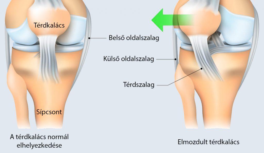 a térd alatti fájdalom visszérrel)