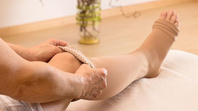 a visszereken a lábakon hogyan kell kezelni