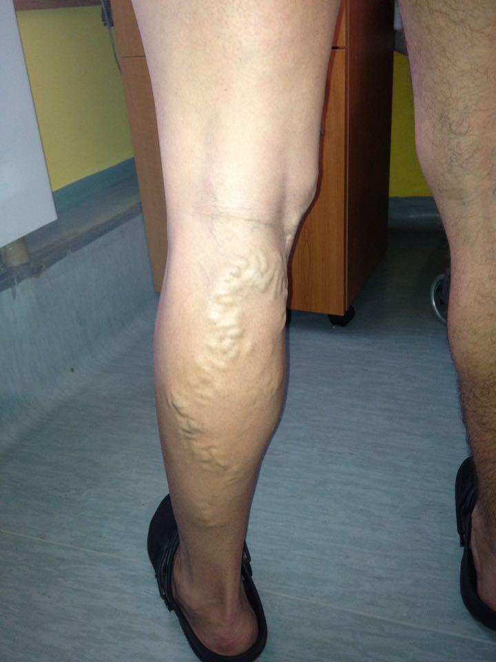 a varikózis utolsó szakasza a lábakon lábak visszér