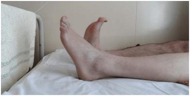 vélemények a lábak visszér alternatív kezeléséről