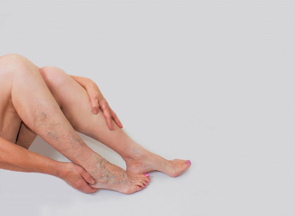 hogyan történik a visszér a lábakon?