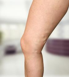 A felületes phlebitis kezelési lehetısségei