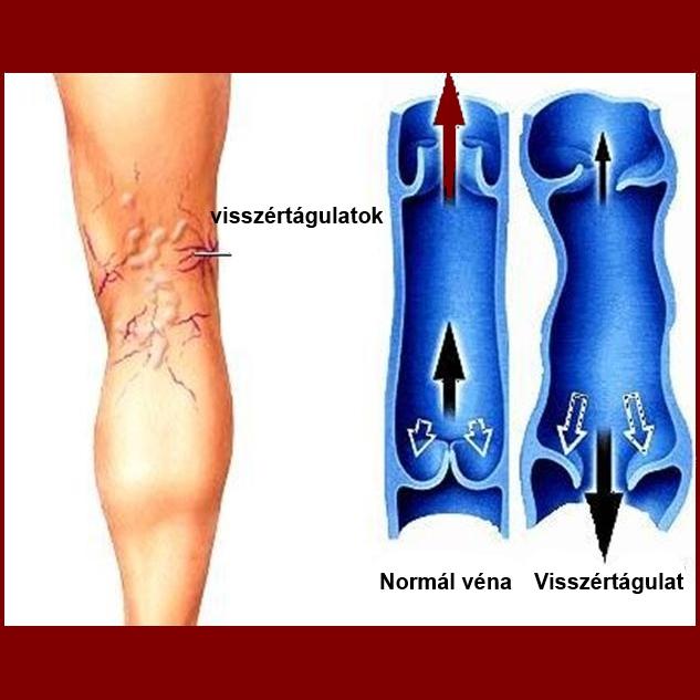 nodosum erythema és visszér