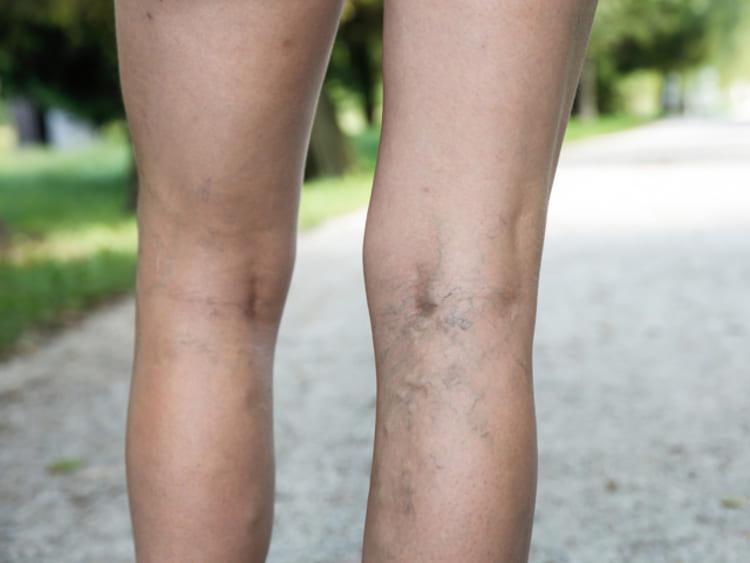 Visszér kezelés népi gyógymódokkal vélemények-vélemények, A visszér bőrbetegség