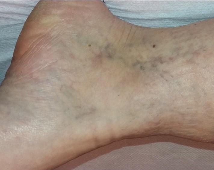 a láb visszérkezel a visszeres kezeléssel hasi visszér