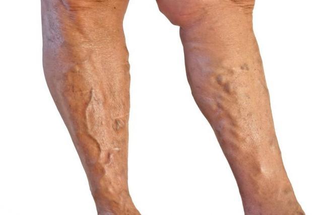 görcsös lábak visszérrel