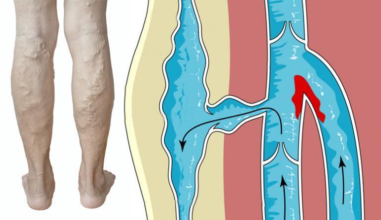 visszér a láb törésével