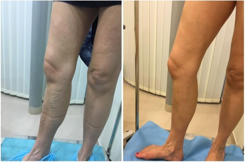 lézeres műtét a lábakon visszér