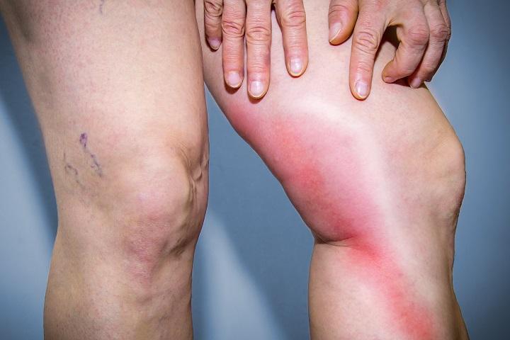 enyhíti a visszeres fájdalom szindrómát