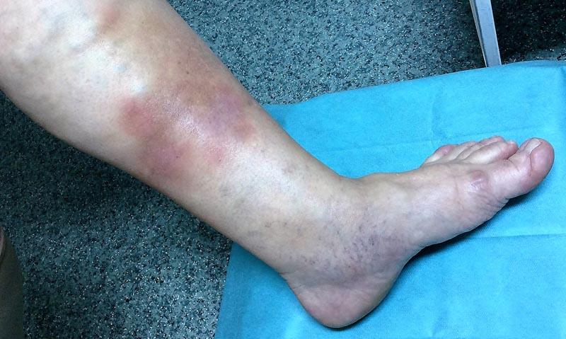 fénykép a sebekről a lábakon a visszerekből