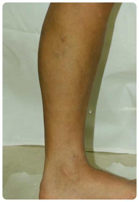 hogyan kell bekenni a lábát a visszér műtét után