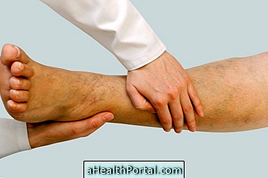 hogyan kezeli a lábak varikózisát