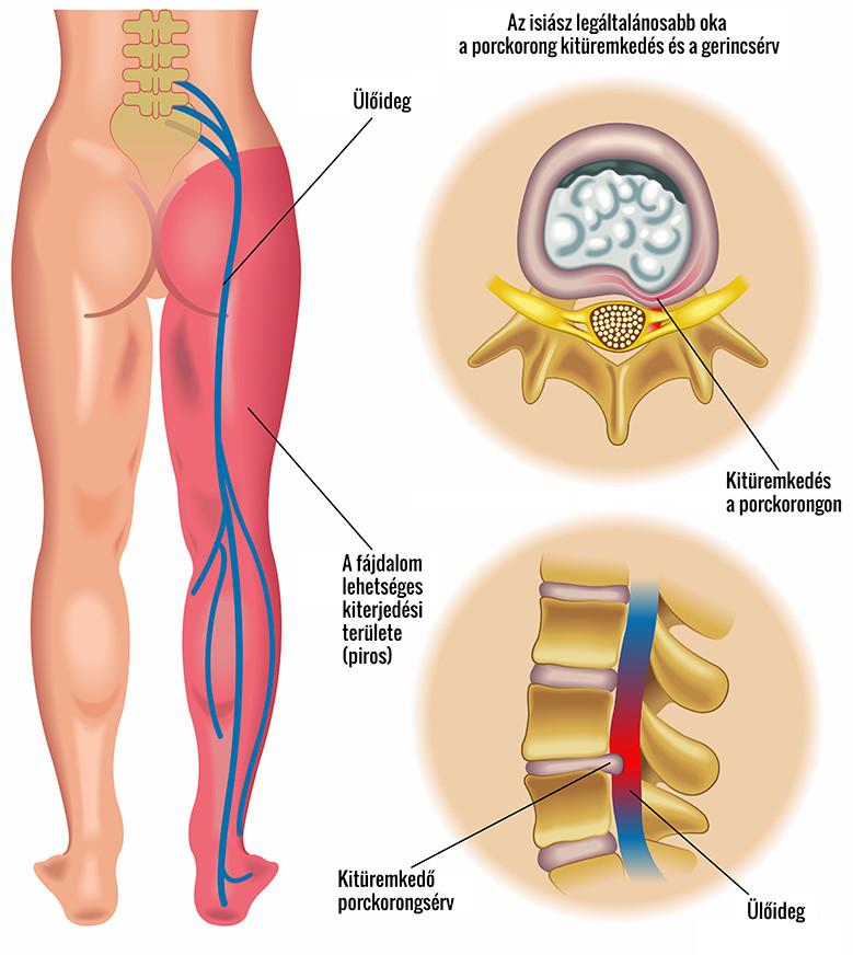 hogyan kezeljük a lábak visszérfájdalmát fájdalommal)