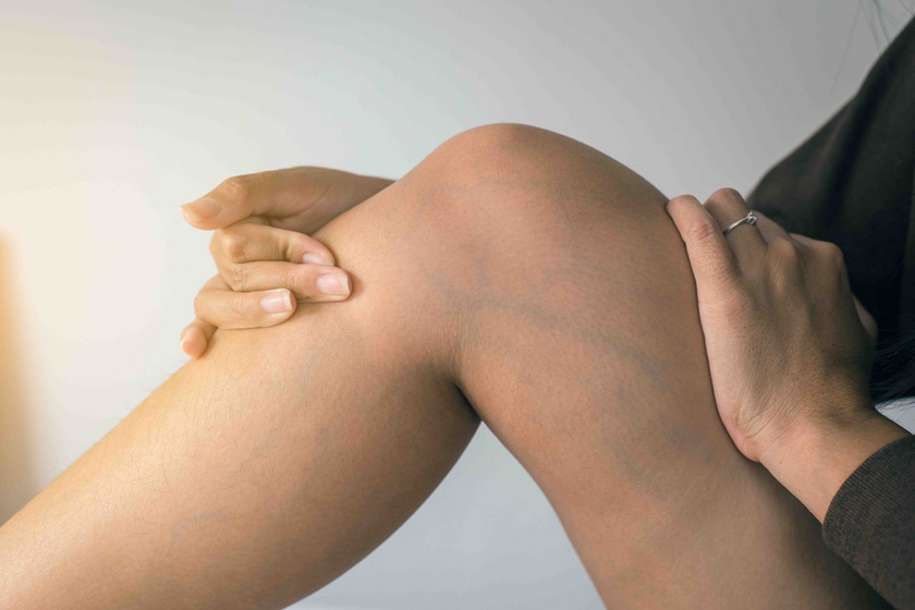 hogyan lehet enni visszérrel a lábakon