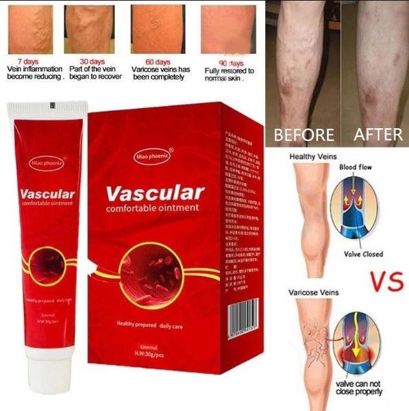 hogyan lehet gyógyítani a varikózisos sebeket