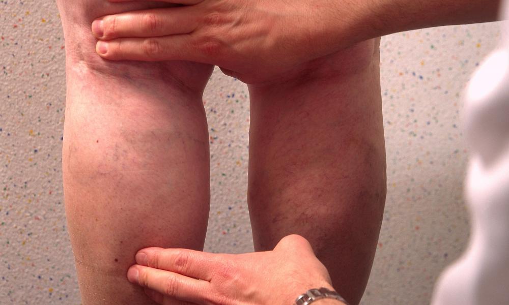 hogyan lehet meghatározni a visszér vagy sem a varikózis a lábakon gyorsan